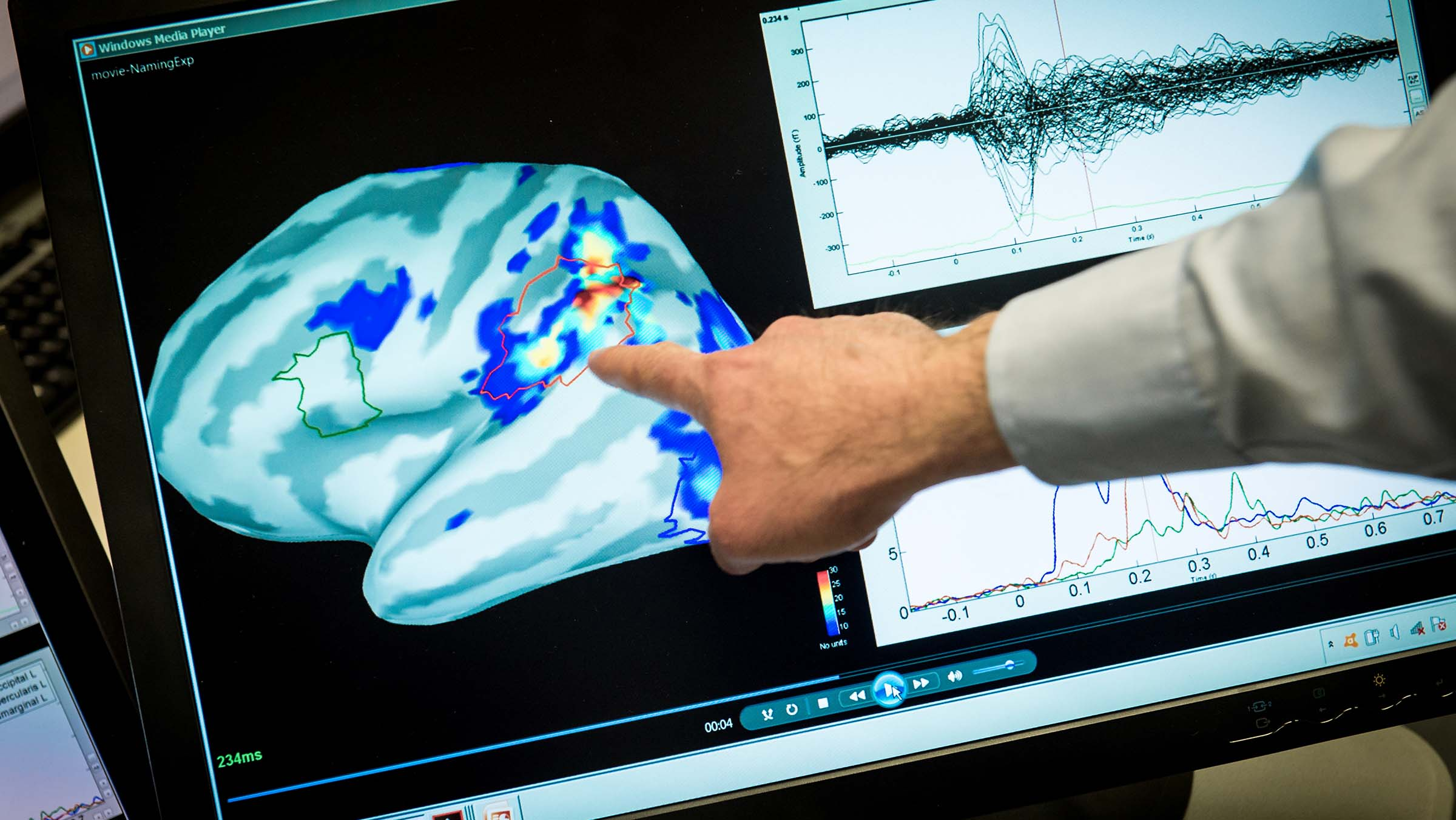 Health specialist points out areas of magnetic activity in a brain displayed on a monitor.